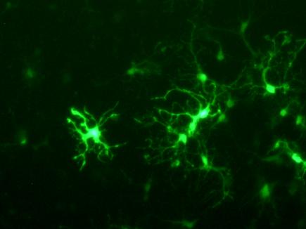 JetMESSENGER - Neuron fluorescence